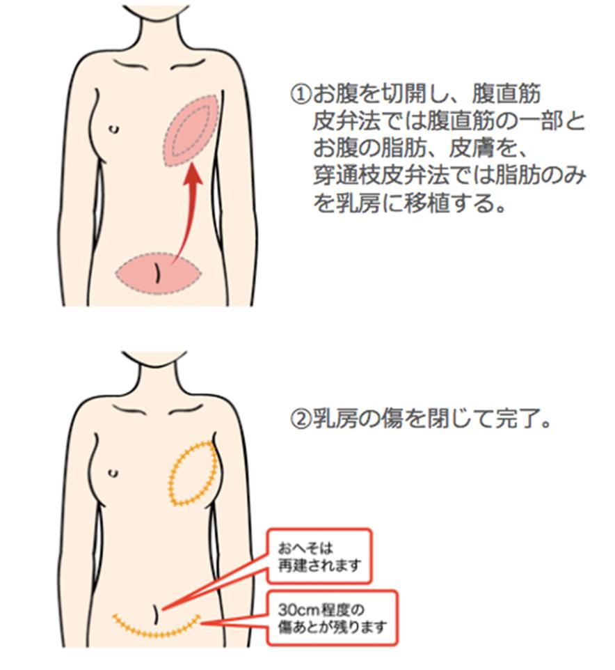 乳腺専門外来 - 当院は乳房再建の認定施設です │ 診療科・専門外来 ...